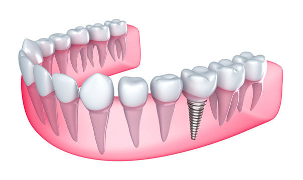 best dental implants in Fort Worth